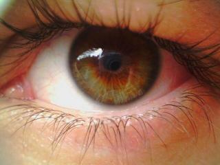 Дистрофия сетчатки глаза – что это такое?