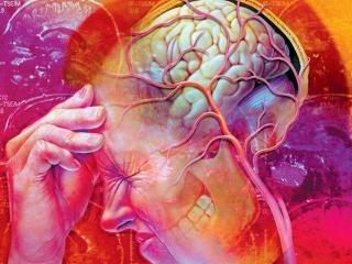 Повышенное внутричерепное давление (внутричерепная гипертензия)