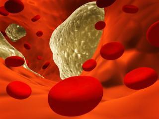 Холестерин: народные средства лечения