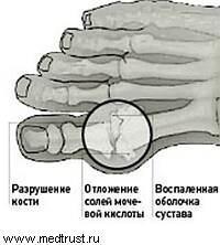 падагра кости: