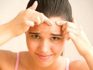 Косметические  средства и маски против угревой сыпи и прыщей (уход за лицом)