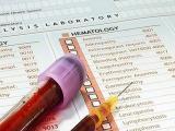 Как расшифровать анализ крови?