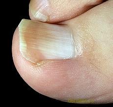 Вросший ноготь. Народные методы лечения вросшего ногтя (рецепты народной медицины)