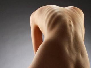 Анорексия: в погоне за красивой фигурой
