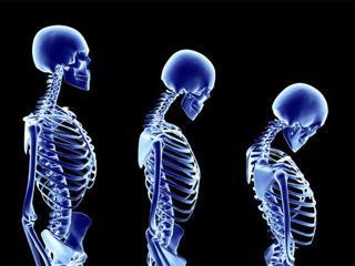 Остеопороз. Причины возникновения и методы лечения остеопороза