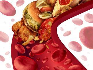 Хороший и плохой холестерин (женское здоровье)