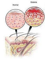 Дайвонекс крем при псориазе