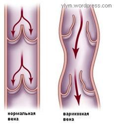 Варикоз операции осложнения