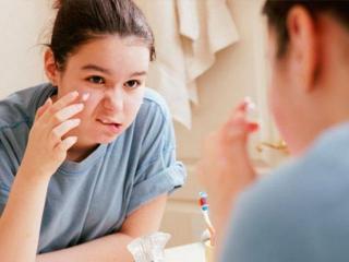 Угревая сыпь и прыщи: причины возникновения,  методы лечения (уход за лицом)