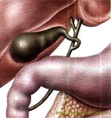 Фитотерапия лечение холецистита