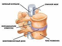 Женское здоровье: остеохондроз позвоночника