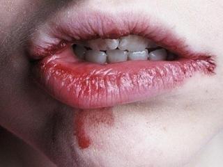 Что делать, если обветрились губы
