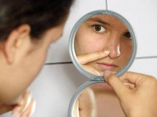 Уход за жирной кожей: рецепты лечебных масок для лица